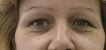 Stay Away From Aging Signs Without Paying For Surgeries
