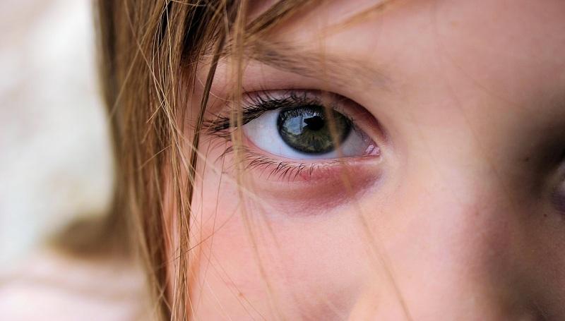 Under Eye Skin problem