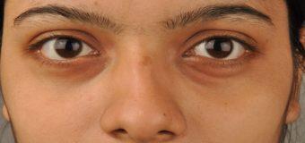 Can you lighten dark circles naturally?