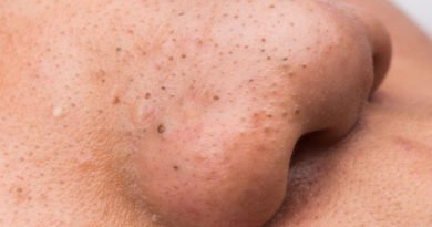 Blackheads and Pimples